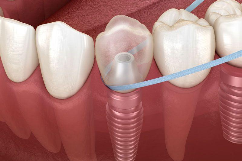 Cuidado para los implantes dentales