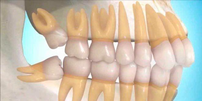 Cirugía oral en Branemark Las Palmas