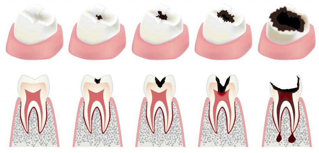 ¿En qué consiste una endodoncia?