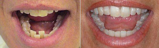 Antes y después del primer caso tratado en nuestro centro con Invisalign®. A la paciente también se le efectuó un blanqueamiento dental.