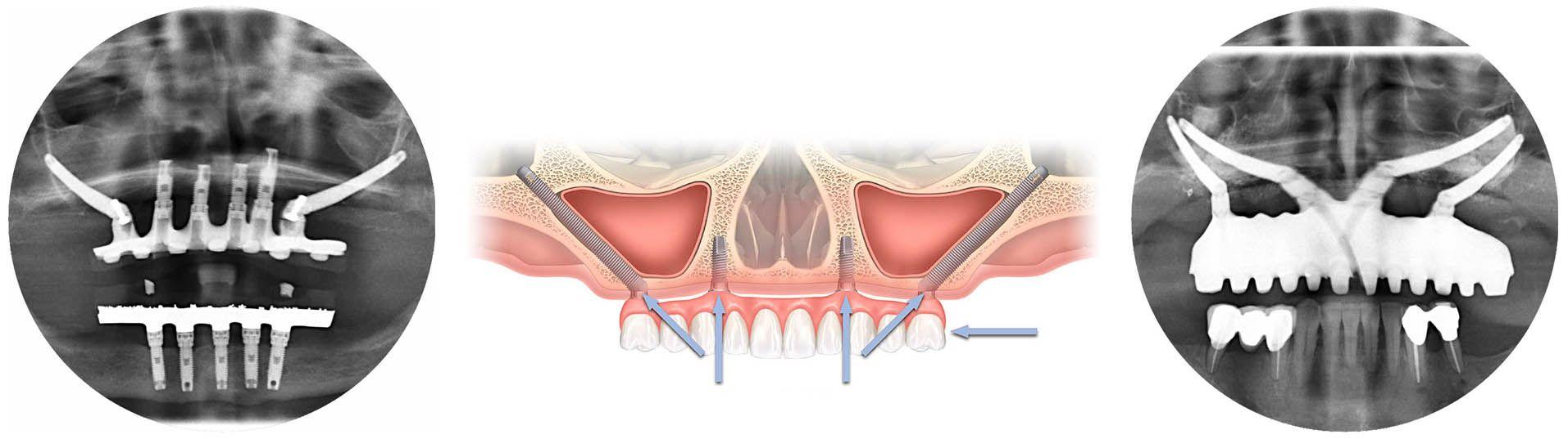 De izquierda a derecha: Estado actual de un caso de implantes cigomáticos tratado en 1999, esquema de cigomáticos anclados al hueso malar y caso Quad Zygoma tratado en 2013