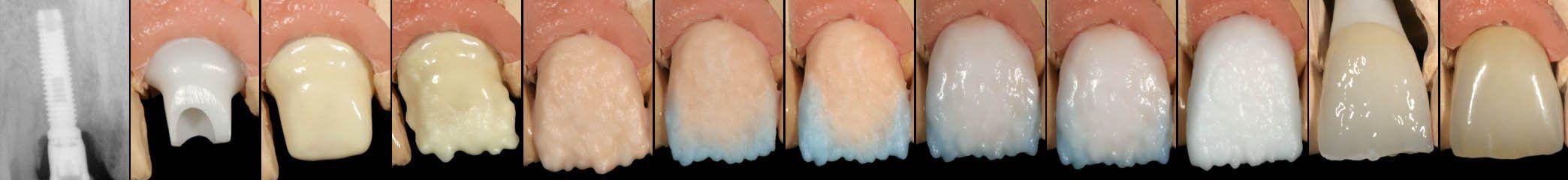 HSituación del implante en 1987 y elaboración de una nueva corona sólo cerámica en 2005