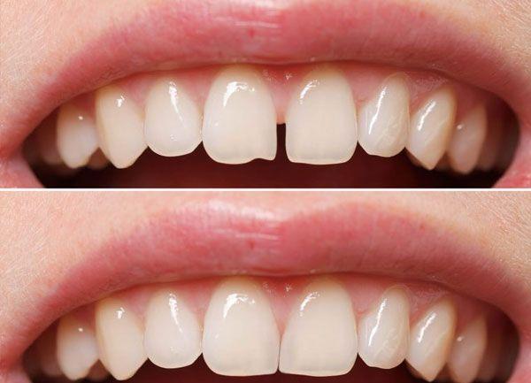 Cierre de Diastemas, estética dental