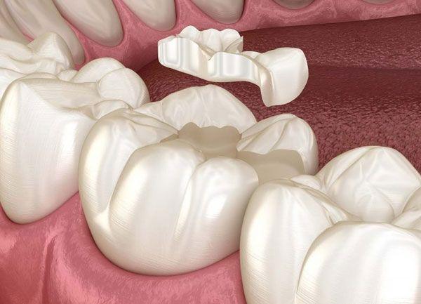 Reconstrucción dental en Las Palmas