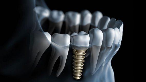 Recupera tus dientes en un día: implantes de carga inmediata