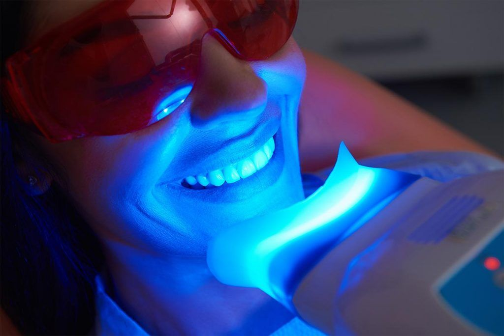 Proceso blanqueamiento dental