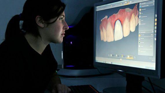 Por qué se rechaza un implante dental