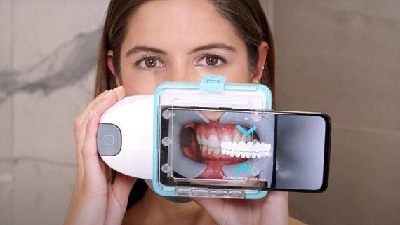 Invisalign y Dental Monitoring