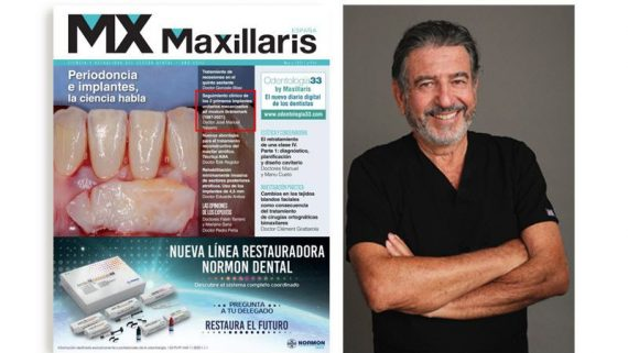 Seguimiento clínico de los 2 primeros implantes unitarios que fueron colocados en España por el Dr. José Manuel Navarro (1987-2021)