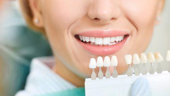 Cuál es la solución para los dientes amarillos