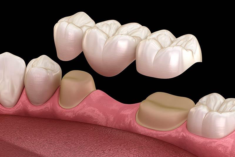 protesis-dental-dientes-tallados