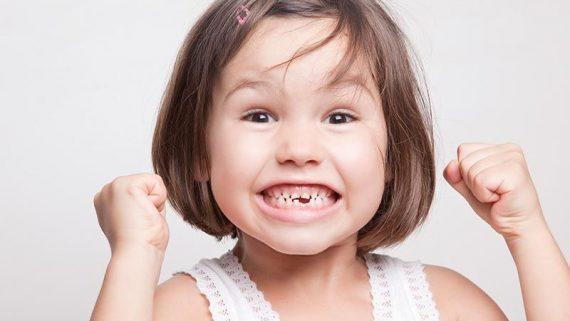 Soluciones para los dientes torcidos en niños