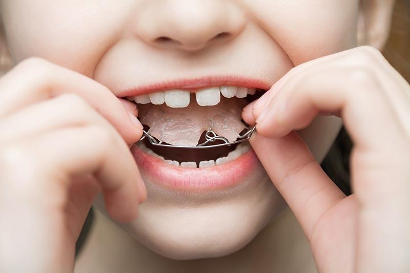 ortodoncia-interceptiva-dientes-torcidos-ninos